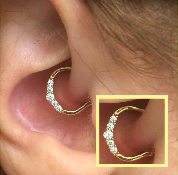 Daith Piercings for Your Health