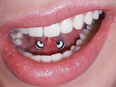 oral_piercings_and_dental_health